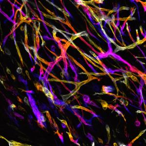 Tumour of Fire © Marcello Delfini & Mathieu Fallet - CIML CNRS-INSERM-AMU