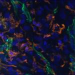 Nanoparticles in brain tumor vessels © Françoise Geffroy, CEA-DRF-NeuroSpin-UNIRS, Midas Team