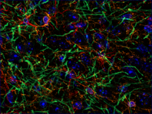 Glial cells in rat brain © Françoise Geffroy, CEA-DRF-NeuroSpin-UNIRS, Midas Team