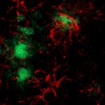 Microglia's attack! © Françoise Geffroy, CEA-DRF-NeuroSpin-UNIRS, Midas Team